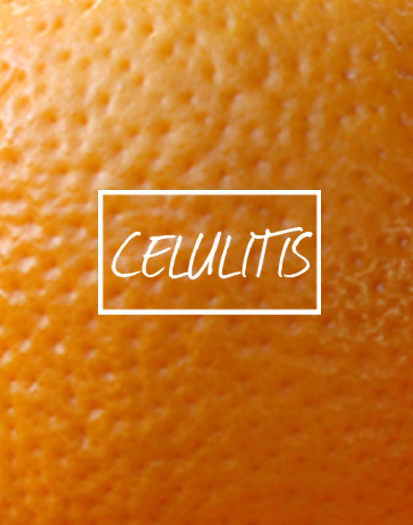 celulitis-biomedica